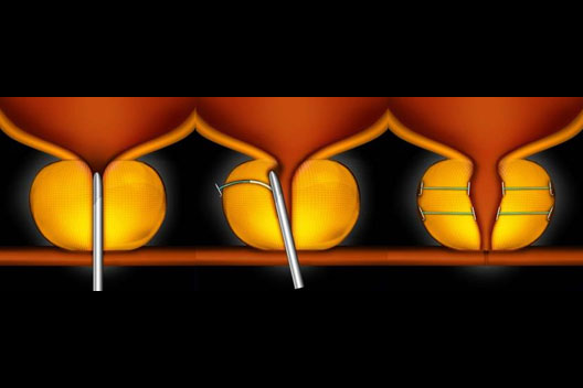 Urolift urology treatment of prostate in Cambridge UK
